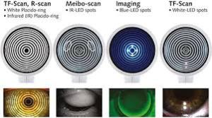 Lipid Secretion Assessment for Dry Eye