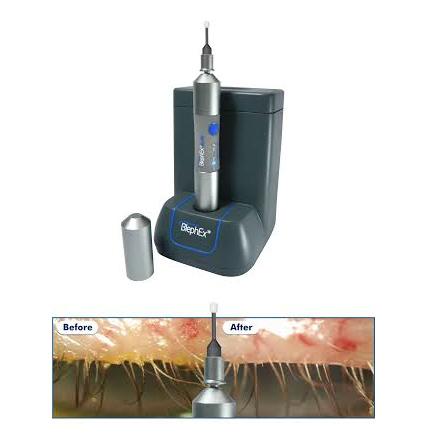 BlephEx Dry Eye Treatment