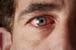 What to do about dry eye